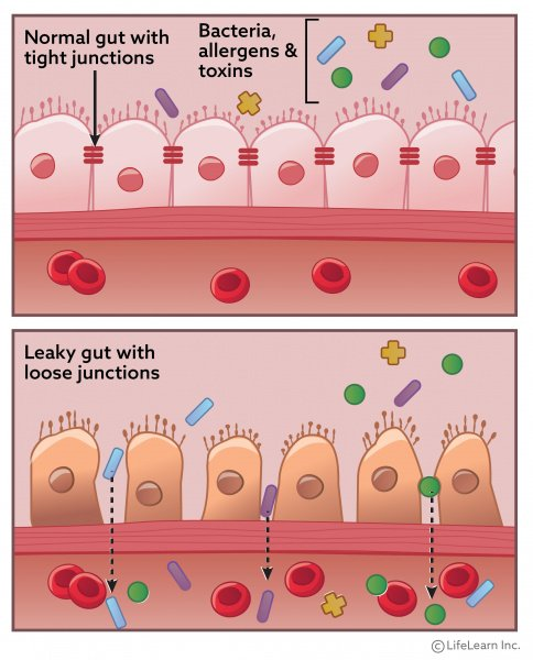 Diagram explaining what a Leaky Gut is